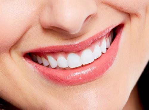 5 Cara Perawatan Gigi Ini Ampuh Hindari Gigi Berlubang
