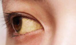 5 Kebiasaan Buruk Ini Bikin Mata Mudah Sakit, Lho!